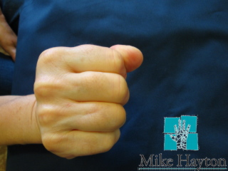 finger joint replacement
